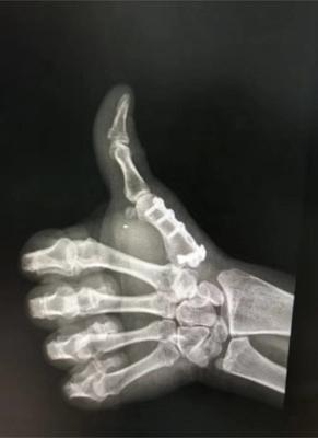 玩家们需要面对的隐藏终极BOSS:如何应对拇指腱鞘炎