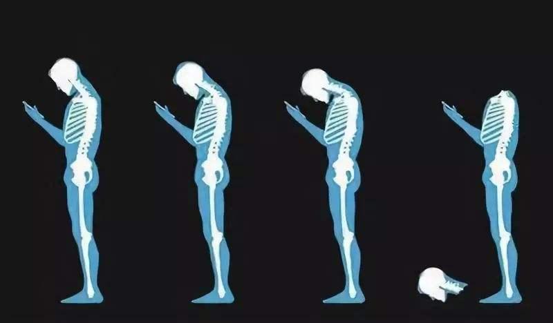梗著脖子工作和玩遊戲會帶來哪些傷害?你需要這篇頸部保養指導